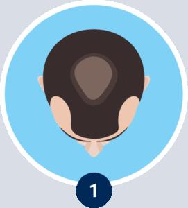 Revitensin® • Rinforza i capelli